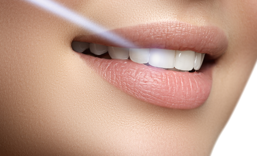 Laser teeth whitening Chennai
